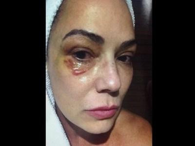 Justiça condena Lírio Parisotto por agredir Luiza Brunet