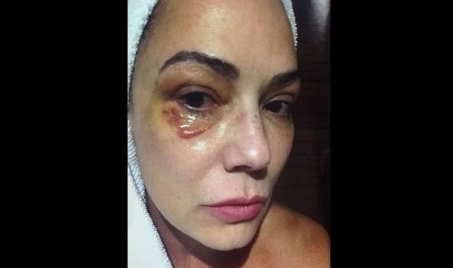 Defesa diz que ex-marido tem prova de 'descontrole' de Luiza Brunet
