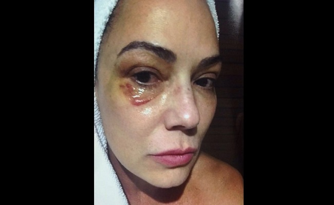 Luiza Brunet divulga foto com hematomas no rosto após agressão