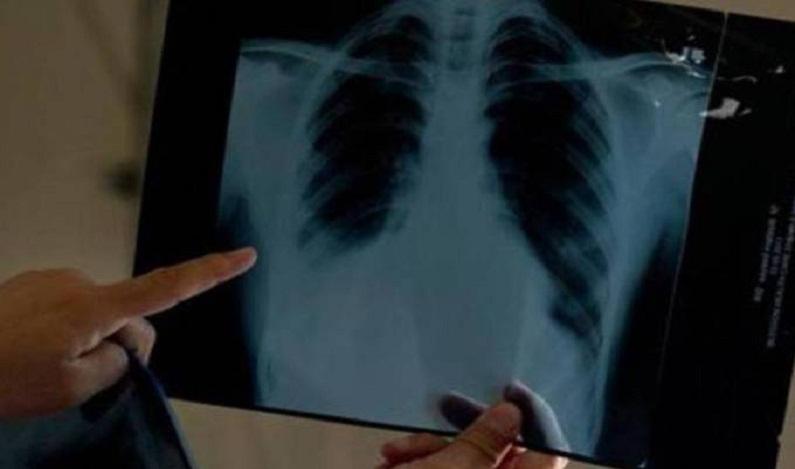 Novo medicamento ajuda a reduzir progressão do câncer de pulmão