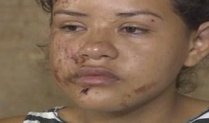 2ª estudante atropelada por caçamba em Porto Velho não quer ir à escola, diz mãe