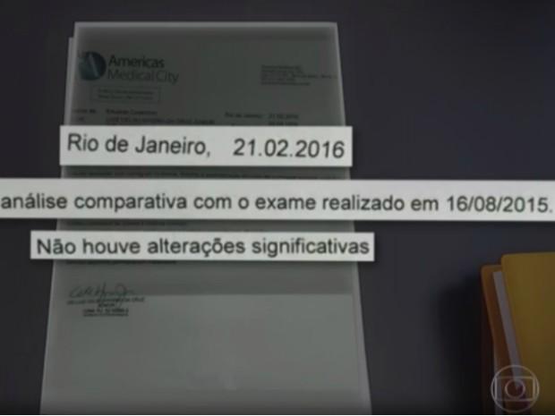 Cunha refez o exame em 2016 (Foto: Reprodução/Jornal Nacional)