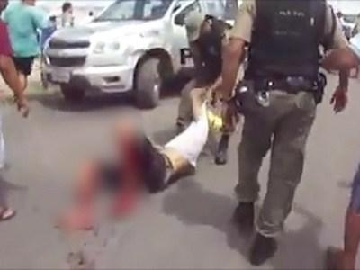 Homem baleado por PM em Pernambuco segue em estado grave
