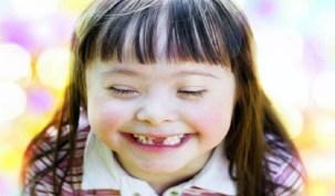 Pela 1ª vez um tratamento para síndrome de Down mostra eficácia