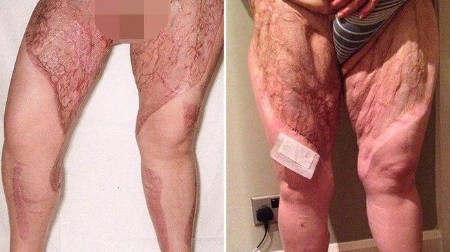 """Após depilação, bactéria """"come"""" pele da perna de mulher e quase a mata"""