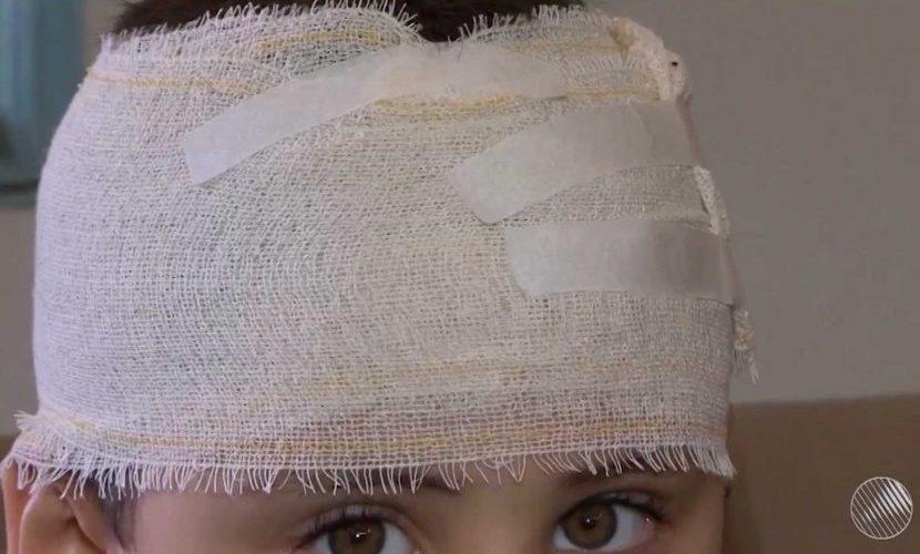 Menino de 6 anos é atacado por rottweiler e salvo por vira-lata