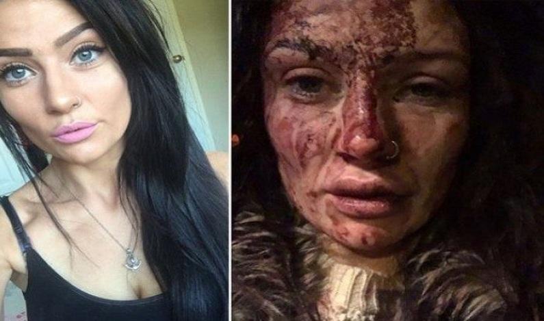 Jogador espanca a namorada e ela divulga as fotos em redes sociais