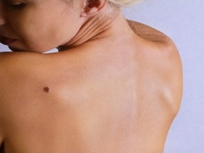 Novos tratamentos aumentam em até 3 vezes chances de sobrevivência para pacientes com câncer de pele
