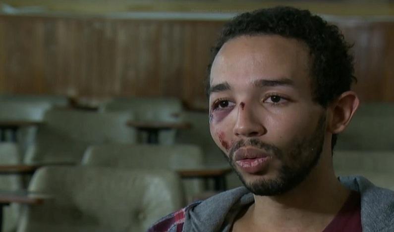 Jovem vai até delegacia denunciar furto e é espancado por ser gay