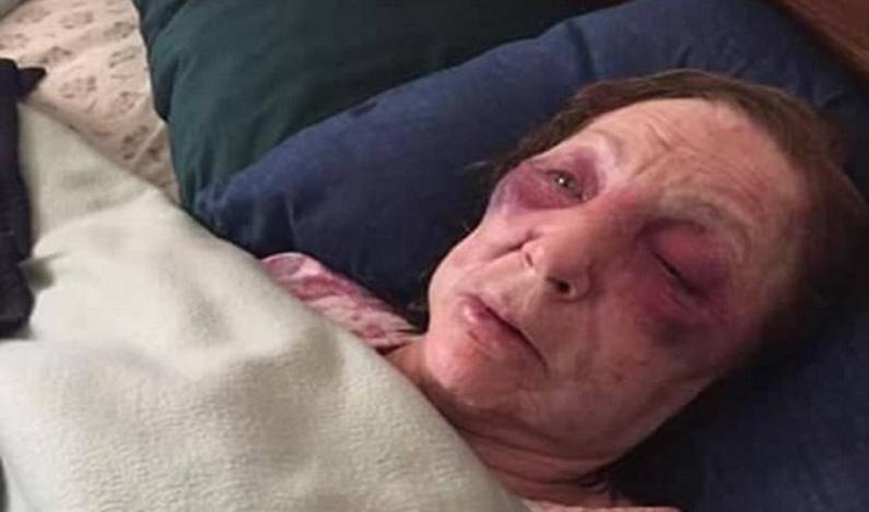 Idosa é agredida e roubada um dia antes de ir ao funeral do marido