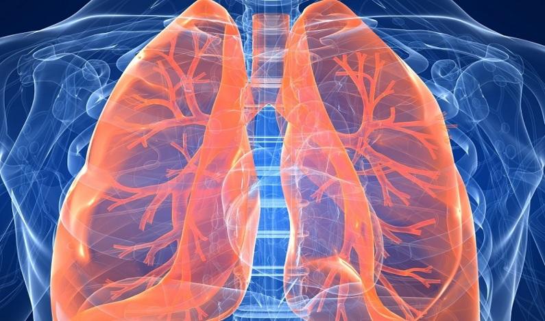 Hospitais usam biópsia menos invasiva para monitorar câncer de pulmão