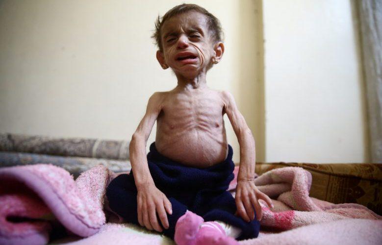 Chefe de direitos humanos da ONU denuncia fome em cerco na Síria e exige acesso humanitário