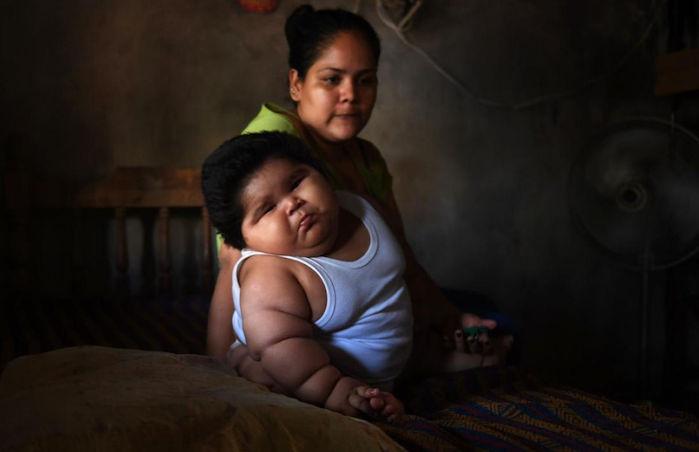 O drama de Luisinho, o bebê de 10 meses que pesa 30 quilos