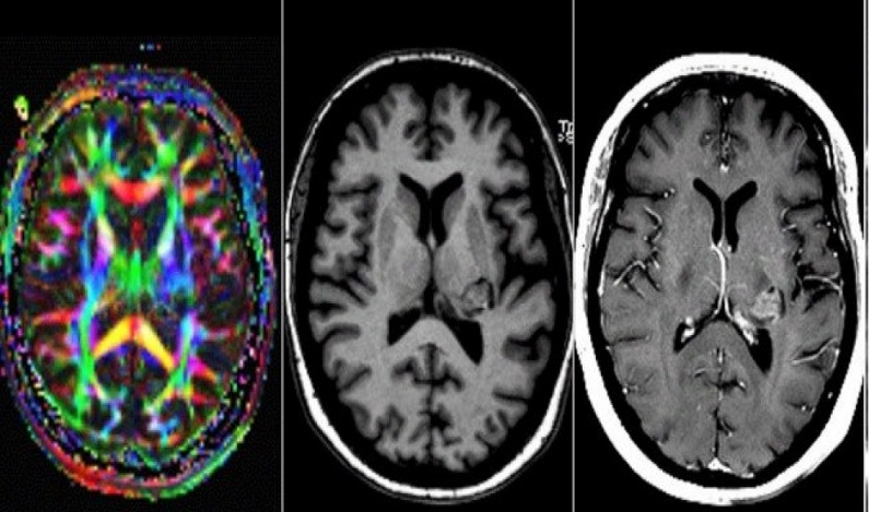 Mulher que dizia 'ouvir a voz de Deus' descobre tumor cerebral