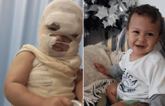 Cafeteira vira e desfigura rosto de bebê de 1 ano durante férias; pais fazem apelo