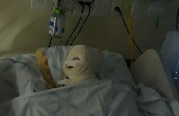 Aparelho explode durante cirurgia e causa queimaduras em bebê em hospital de BH