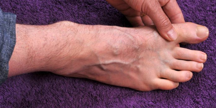 Gout Causes, Symptoms, and Treatment