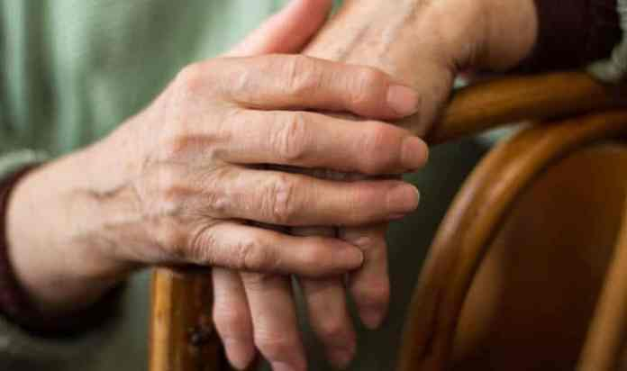 Woman's Hands Rheumatoid Arthritis