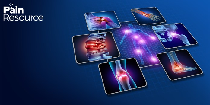 Anti-Arthritis Plan