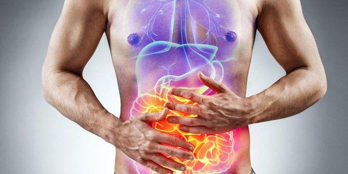 Irritable bowelsyndrome