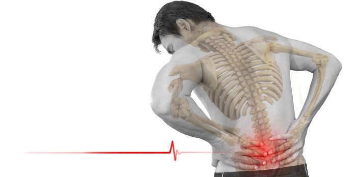 Low-backpain