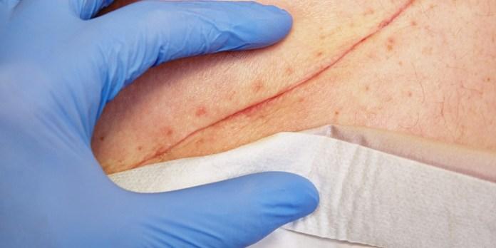 Endometriosis Surgical Scar