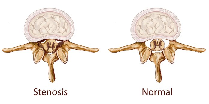 What Is Spinal Stenosis