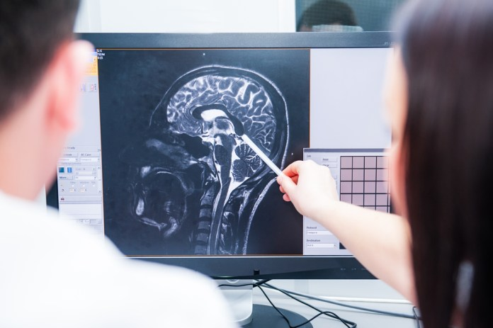 diagnosing brain fog cause