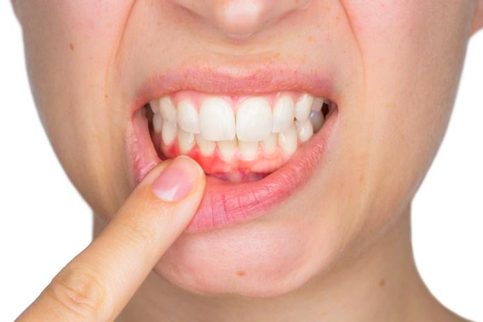 How to Avoid Gingivitis