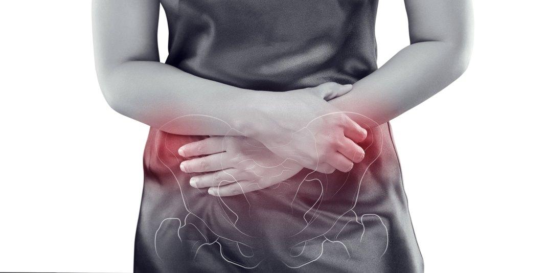 Pelvic Pain in Women