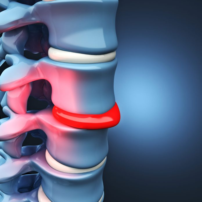Herniated Discs and the Cervical Spine