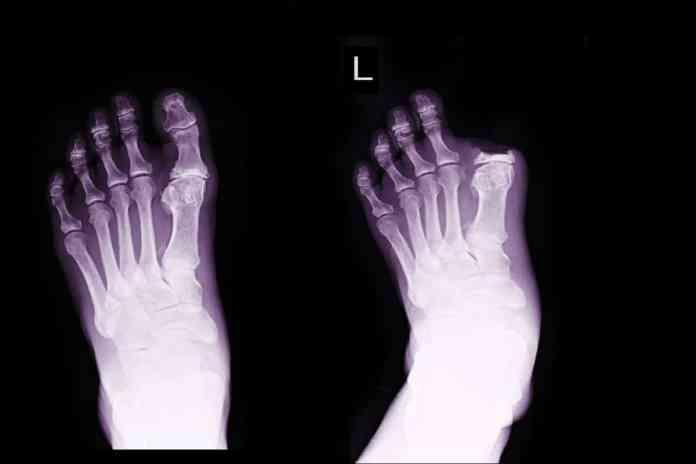 Manage Phantom Limb Pain x-ray of amputated big toe