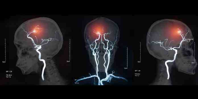 What is post stroke pain syndrome