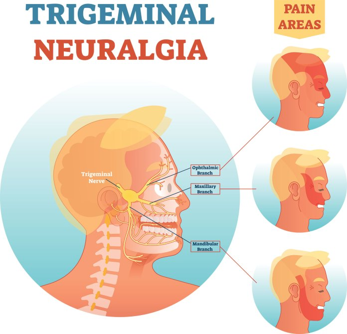 what is trigeminal neuralgia