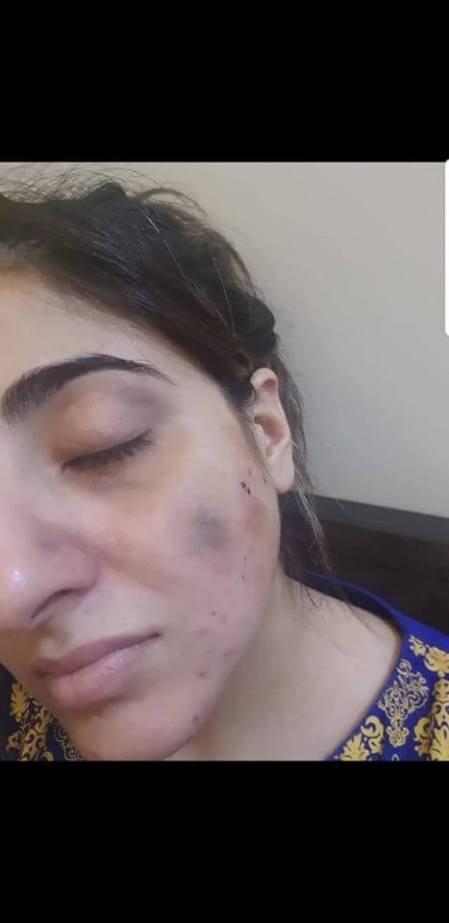 MOhsin Abbas Haider Beat his own Wife Fatima Sohail