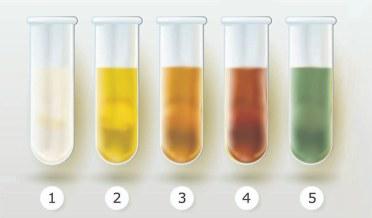 health, fitness, urine test