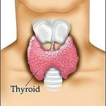 Can do you recover from hypothyroidism with LCHF?
