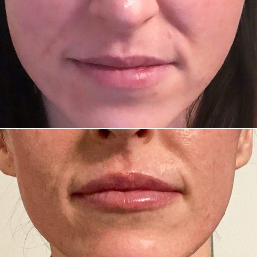 PaleOMG - The Lip Filler Facts