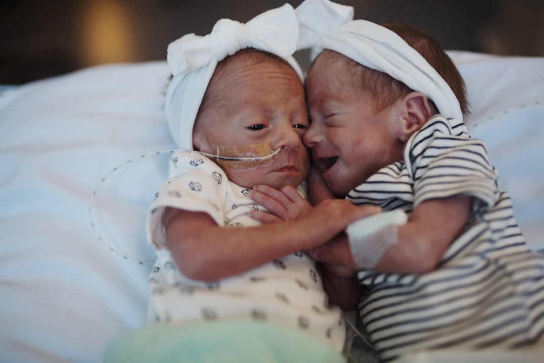 Birth story | Preemie Twins born at 30 weeks | NICU