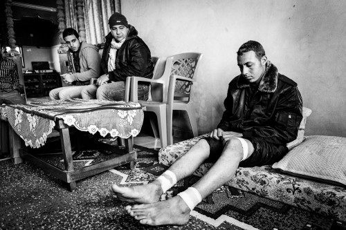 "Omar Wadi (21) sitting in his house in Jabalia refugee camp, still recoverig from wounds in both legs after being shot by Israeli soldiers on January 11th 2012, while he was in the ""Buffer Zone"". He was injuried by the shrapnel of a hollow-point bullet when he was trying to help Anwar Almalouk (19), who was shot in the stomach. Anwar would later die while being transferred to the hospital."