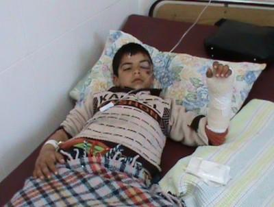 Yassin Knaebi`s injuries