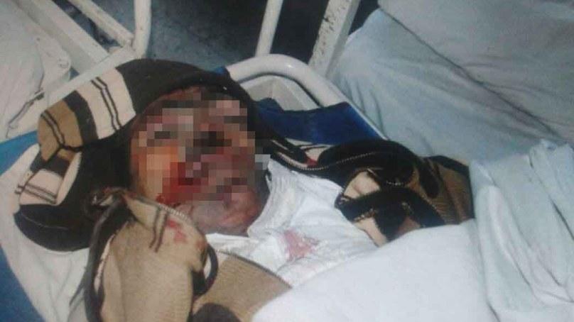 Electrocuted lineman loses his life in Skardu