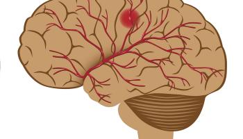 kjøtt-ferdigprodukter-kjøtt, såkalt bearbeidet kjøtt-hjerneslag,