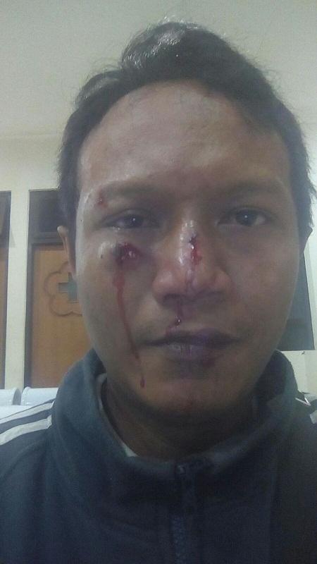 Klaten Darurat Preman, 4 Aktivis Islam Dikeroyok Saat Membubarkan Pesta Miras
