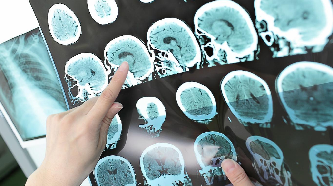 Promisorios resultados de una droga para la esclerosis múltiple