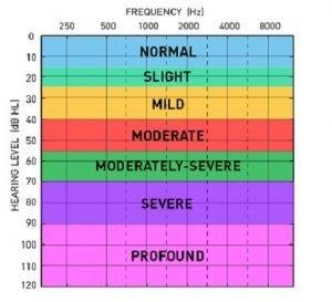 Batas Gangguan Pendengaran Pada Anak