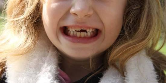 Der Mund der Tochter mit den Zahnlücken