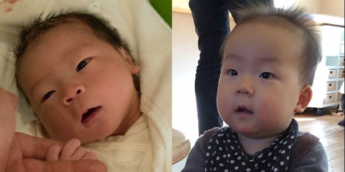 (左)生後30分(右)生後11ヶ月
