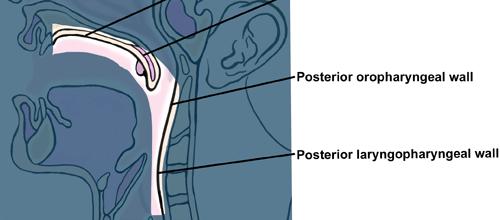 Posterior Laryngopharyngeal wall