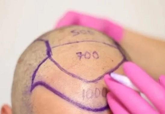 Kök Hücre İle Organik Saç Ekimin Hakkında Detaylı Bilgiler